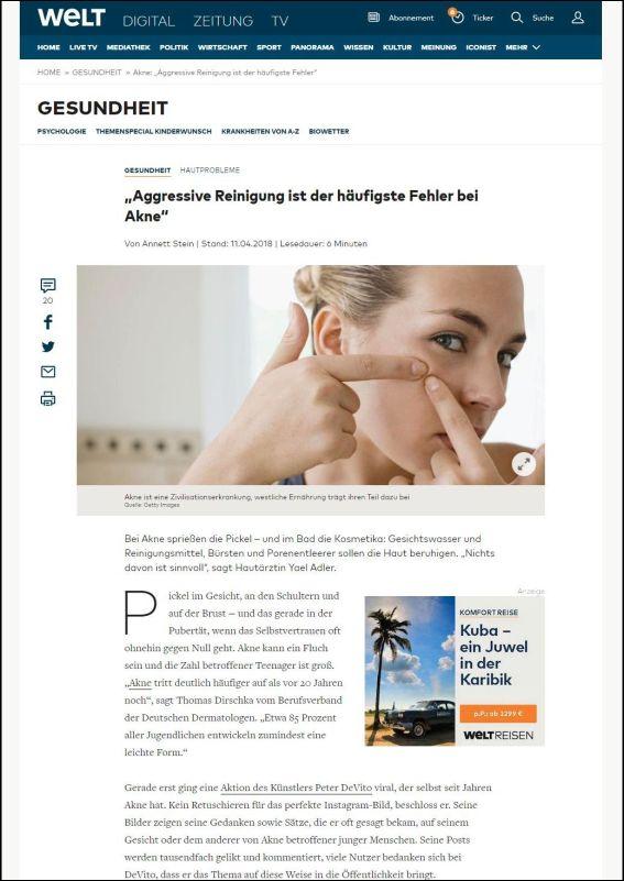 welt.de | Aggressive Reinigung ist der häufigste Fehler bei Akne | 11.04.2018
