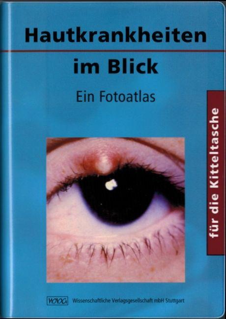 1. Deutsche Auflage (Bestseller), Übersetzungen in holländische und tschechische Sprache